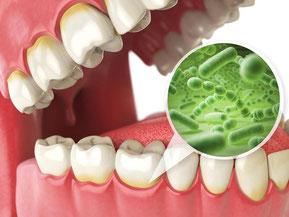 歯周病イメージ