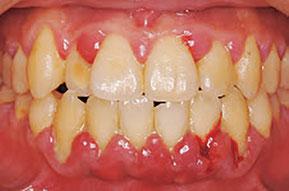 八戸 歯医者 歯周病 口臭 ドライマウス 口が渇く