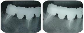 歯の移植 途中経過