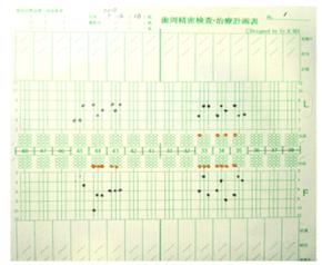 骨の崩壊や出血点などを記録したぺリオ・チャート