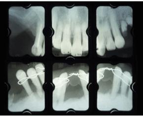 歯周病菌で骨を失った患者さんのレントゲン写真