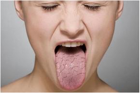 八戸 ドライマウス 口腔乾燥 シェーグレン症候群