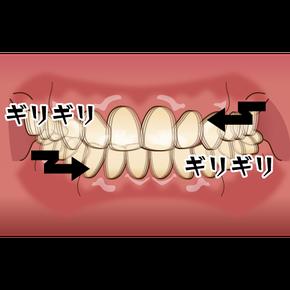 八戸 歯医者 歯ぎしり マウスピース ナイトガード