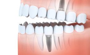Kronen auf Zahnimplantaten