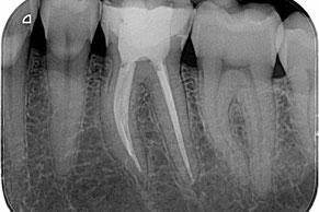 Mit Wurzelbehandlung Zähne erhalten