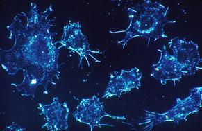 Krebsvorsorge für Männer