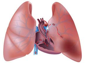 Deep vein thrombus can break free causing a Pulmonary embolism