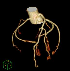 3D Darstellung der Herzkranzgefäße im CT