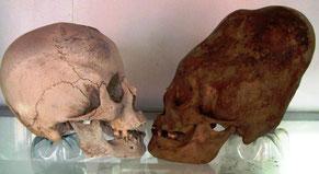 Comparaison crâne normal - crâne allongé