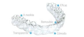 Ortodoncia invisible San Fernando de Henares