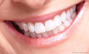 Deutlich sichtbar weißere Zähne mit Zahnaufhellung beim Zahnarzt.