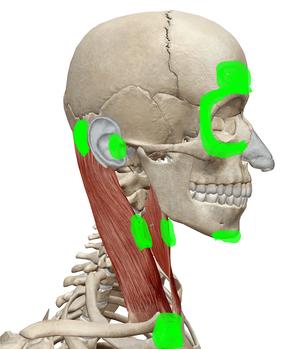 胸鎖乳突筋のトリガーポイント