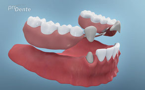 Wenn im hinteren Kieferbereich Implantate mit Brücken gemacht werden, können Teilprothesen vermieden werden.
