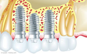 Für Implantate müssen bei der PZR spezielle Instrumente verwendet werden.