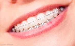 Bei fsetsitzenden KFO-Apparaturen ist die häusliche Mundpflege schwierig. Deshalb: Regelmäßige professionelle Zahnreinigungen!