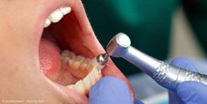 Damit sich nicht so schnell wieder Beläge festsetzen, werden die Zahnoberflächen poliert.