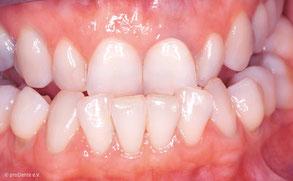 Kreuzbiss: Die unteren Zähne überragen die oberen nach außen.