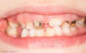 Starke Karies an den Milchzähnen kann zu vorzeitigem Zahnverlust führen.
