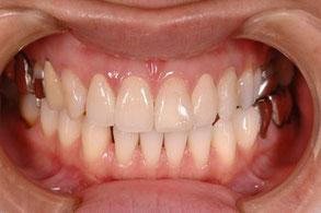 歯茎の黒ずみを漂白
