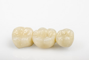 Zahnarztpraxis Domsch Brücken