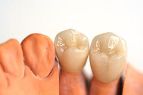Zahnarztpraxis Domsch Kronen