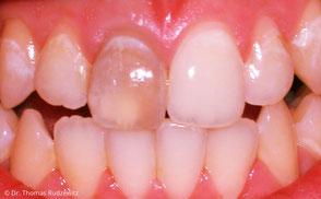 Auch einzelne dunkle Zähne können vom Zahnarzt wieder aufgehellt werden.