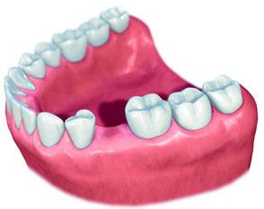 Zahnlücke UK