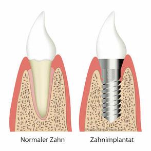 Implantate sind künstliche Zahnwurzeln, die nach dem Einheilen so fest wie eigene Zähne sind.