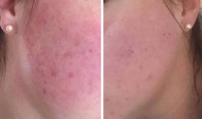 Before and after Glow Peel, Acne treatment, Rosacea treatment, Skin Clinic Neath