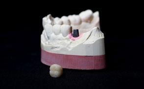 Implantatprothetik © Biermann Zahntechnik GmbH