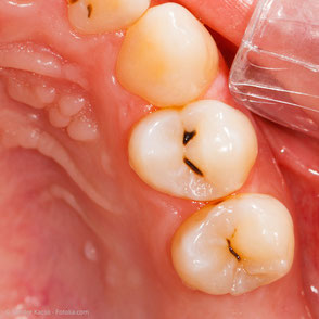 Vorher: Karies (Zahnfäule) in den Grübchen der Kauflächen. Die Karies wirkt von außen oft klein und dehnt sich in der Tiefe aus.