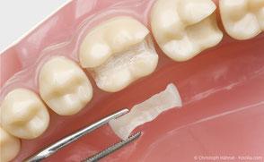 Hochwertige Keramik-Füllung (Inlay), die in einem Stück in den Zahn eingesetzt wird.