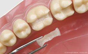 Hochwertige Keramik-Füllungen (Inlay) die in einem Stück in den Zahn eingesetzt wird.