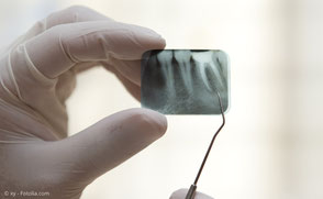 Maschinelle Wurzelkanal-Aufbereitung Zahnarzt Michael Riedel München