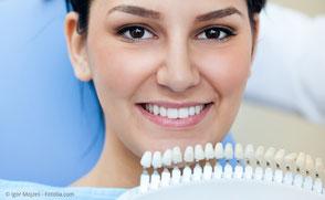 Bleaching wie hell können meine Zähne werden?