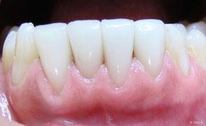 Veneers ohne Verfärbungen, weiße Zähne
