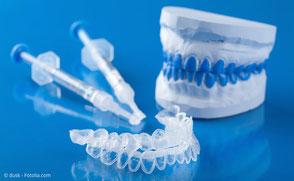 Home-Bleaching von Ihrem Zahnarzt in München