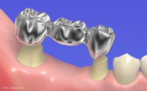 Implantat statt Brücke bei Zahnarzt Michael Riedel in München