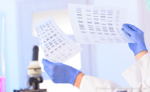 DNA-Test zur Prüfung des Parodontitis-Risikos