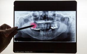 Röntgen-Aufnahme von Zähnen und Kiefer
