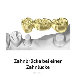 Für Zahnbrücken müssen eigene Zähne abgeschliffen werden. Bei Implantaten ist das nicht erforderlich.