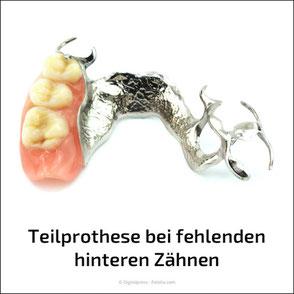 Feste Zähne mit Implantaten statt herausnehmbare Teilprothesen