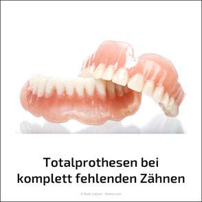 Sicherer Sitz für Totalprothesen mit Implantaten oder komplett fest sitzende Zähne statt Prothesen