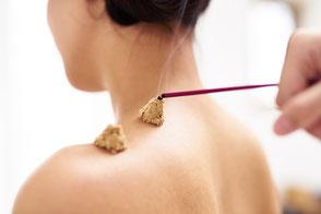 Zwei Moxa-Kegel auf der Schulterpartie einer Frau werden gerade mit einem Räuscherstäbchen angezündet.