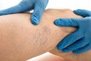 Kinderdermatologie Kinder Hautkrankheiten Hautarzt Dermatologie Sankt Wendel Saarland Salzmann