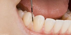 Regelmäßige Professionelle Zahnreinigung (PZR) schützt vor Parodontitis