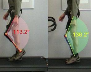 Vergleiche Prothesen