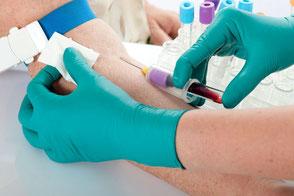 Blutabnahme zur Bestimmung des Harnsäurewerts