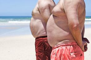 Übergewichtige Männer und Gicht