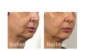 Oxy Geneo Vorher/Nachher Vergleich nach 5 Wochen Behandlung